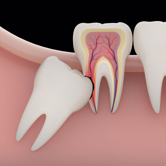 Wisdom Teeth - Dental Services