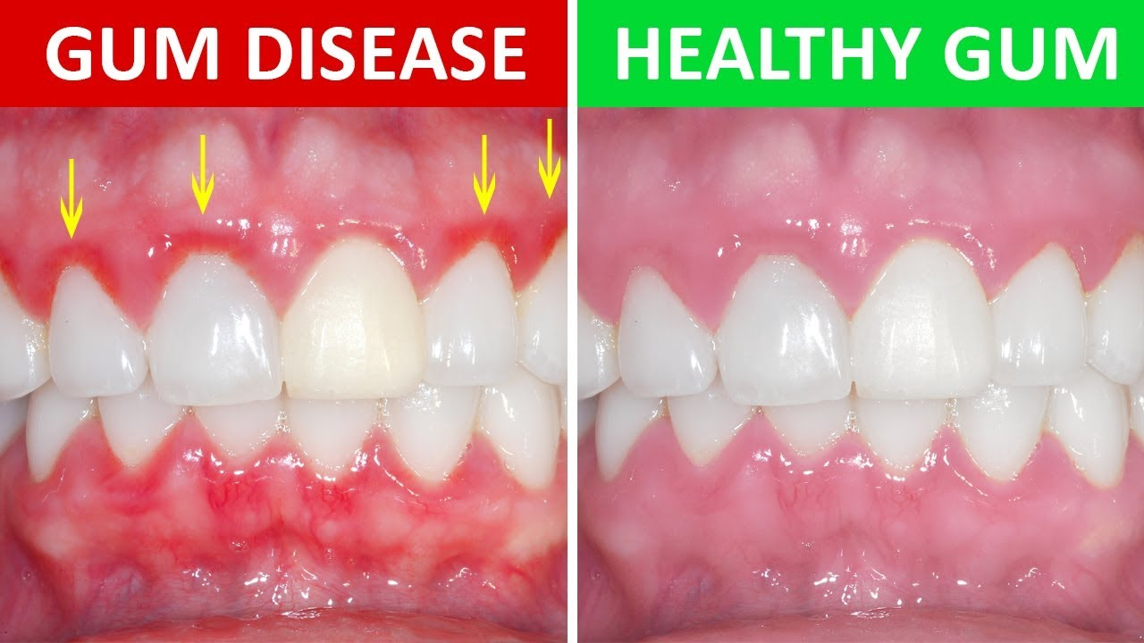 gum disease vs healthy gums